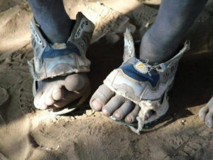 A child's dusty feet sticking out through broken shoes.